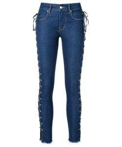 Amapô | Side Lace Up Skinny Jeans