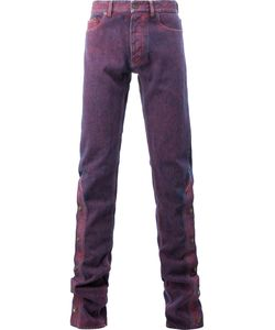 Y / PROJECT | Buttoned Legs Skinny Jeans Size Medium