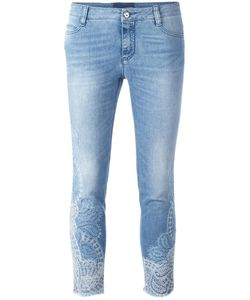 Ermanno Scervino | Lace Inserts Cropped Jeans 46 Cotton/Spandex/Elastane/Polyester