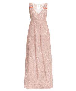 Myf | Кружевное Платье С Сорочкой 164192