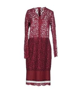 MSGM | Платье До Колена