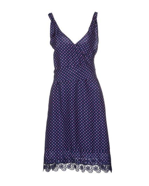 Liu •Jo | Женское Платье До Колена